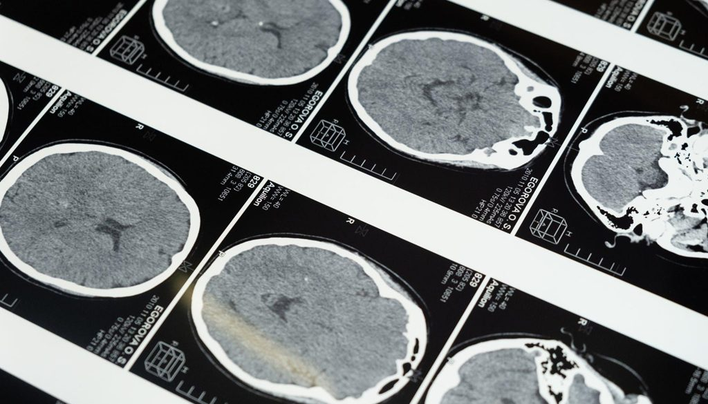 New Drug Slows Cognitive Decline in Alzheimers Patients smpltec
