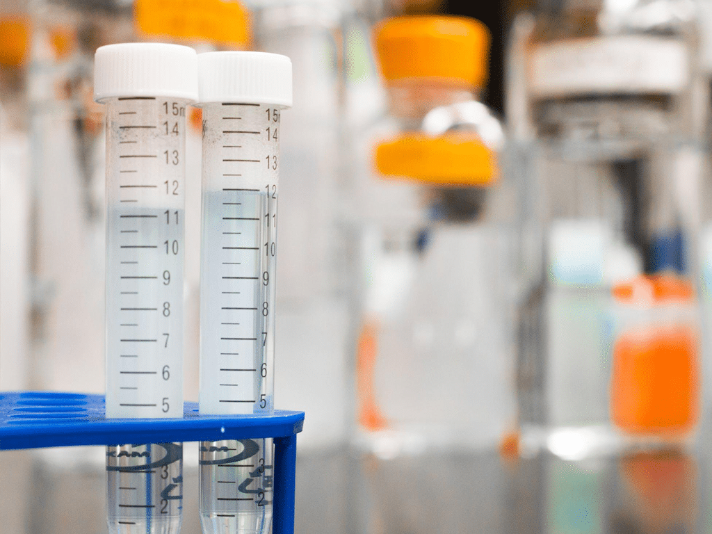 Could A Simple Blood Test Help Identify Alzheimer Sufferers smpl