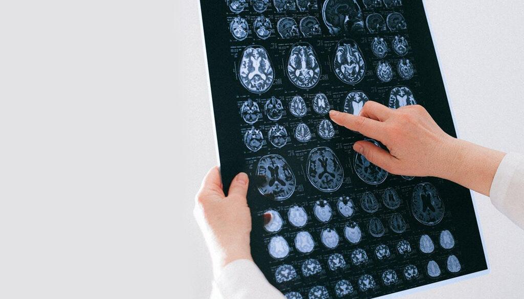 Simple Tips for Better Brain Health smpltec