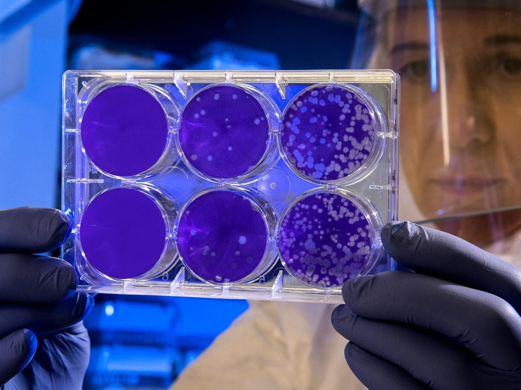 Stem Cells from Mice May Reverse Parkinsons Degeneration smpltec